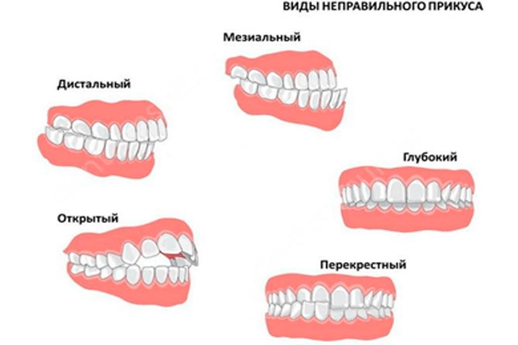 Виды неправильного прикуса зубов