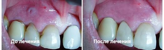 Киста зуба до и после операции