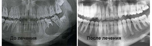 Радикулярная киста на корне зуба до и после