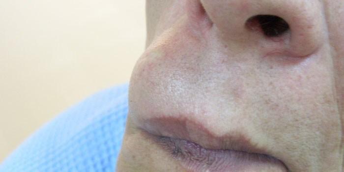 Атерома на лице - удаление