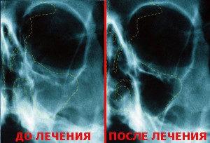 гайморит до и после лечения