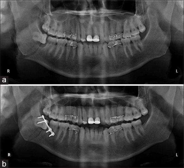 что делают при переломе челюсти