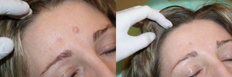 Невус до и после операции