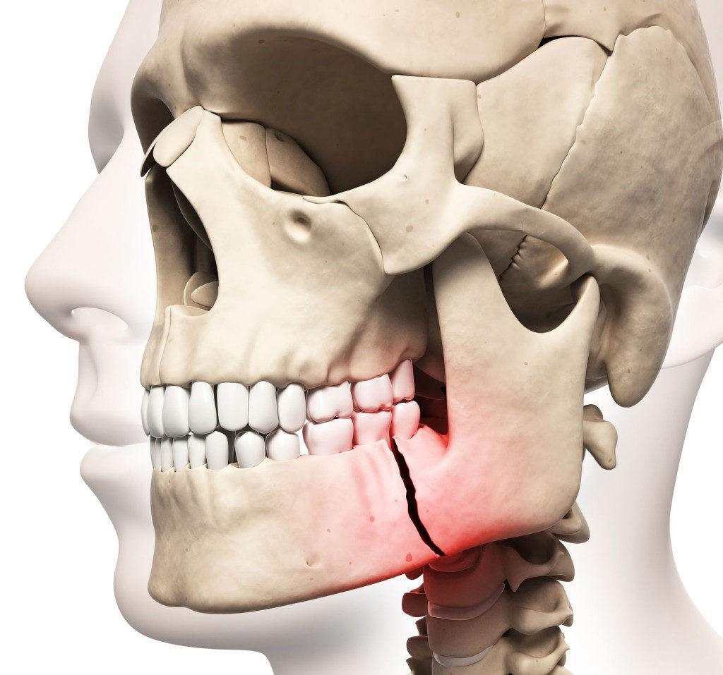 Перелом челюсти лечение в клинике Эндостом