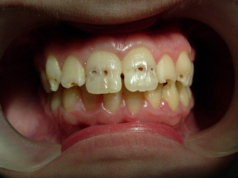 До лечения реставрации зубов