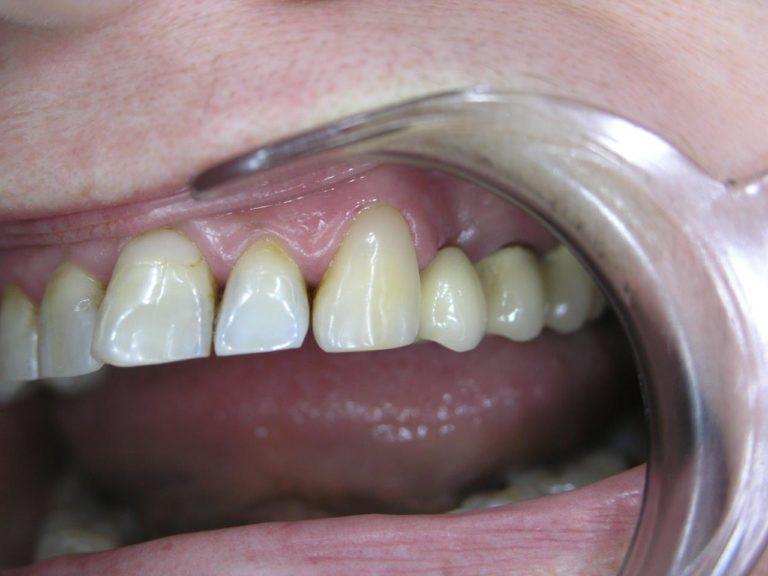 Клиновидный дефект после лечения