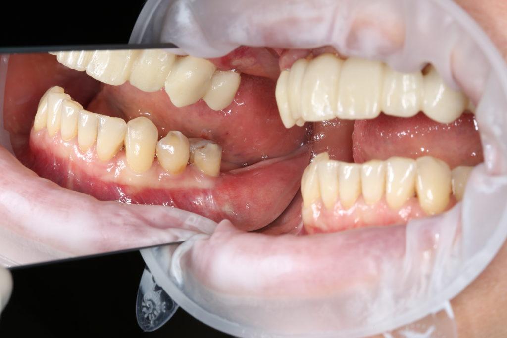 Пластика десны до операции