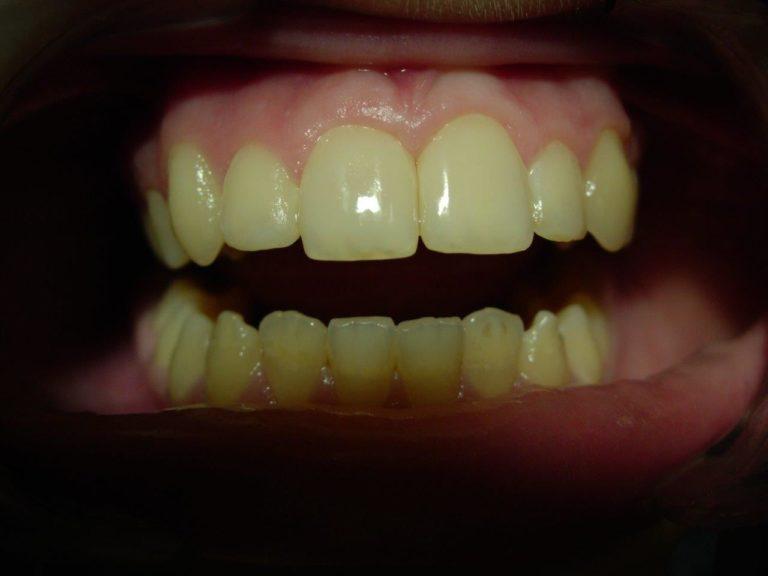 После лечения реставрации зубов