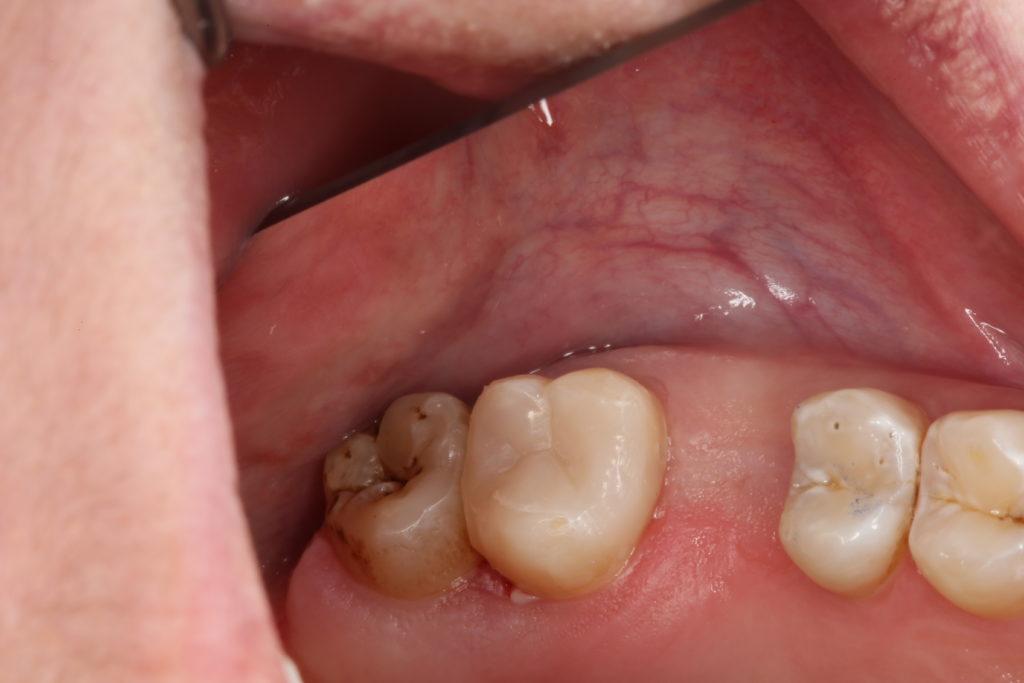 Пульпит зуба после лечения (случай 2)