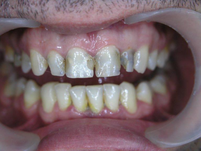 Реставрация зубов винирами до