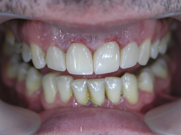 Реставрация зубов винирами после