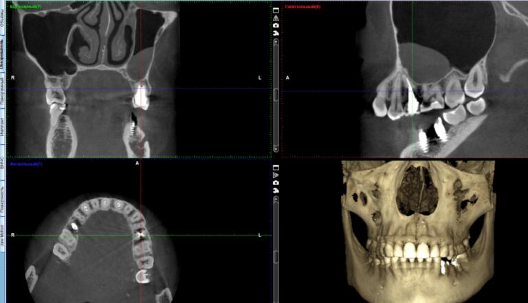 До одномоментного удаления зуба, санации пазухи и имплантации