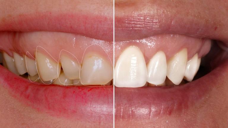 Удлинение коронковой части зуба