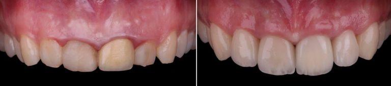 До и после операции удлинения зубов