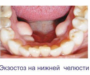 экзостоз нижней челюсти (2) (1)