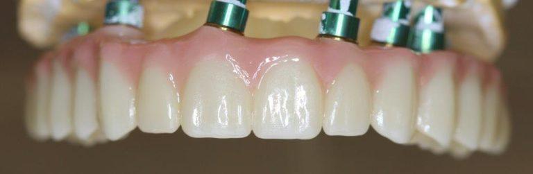 All-on 6 протезирование зубов