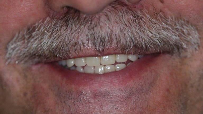 Сделать зубы за 1 день
