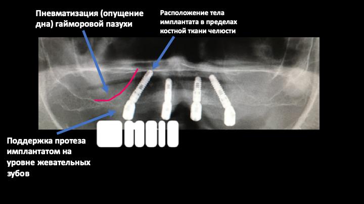 Транссинусальная установка имплантатов все на 4