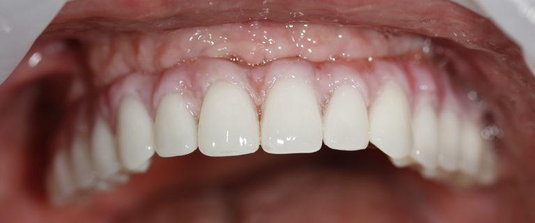 Крепление протеза к зубам